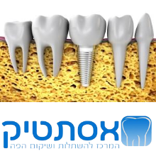 dental-implants-estetic-1.png